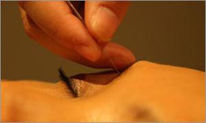 美容鍼と小顔マッサージ